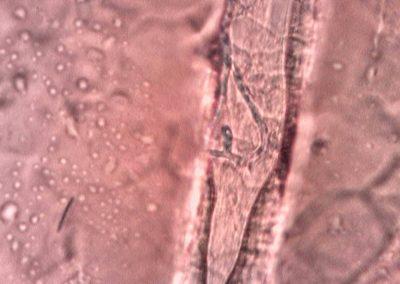 Dermatofiti (4)