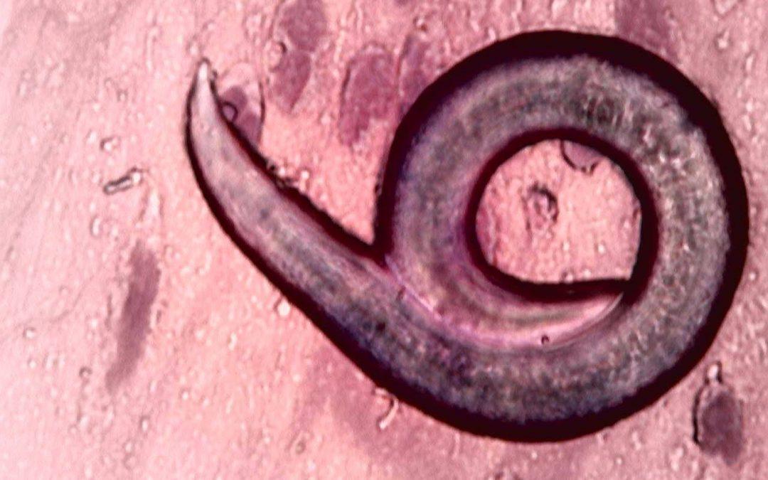 Ascaridioza – viermele cilindric parazit