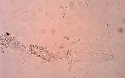 Democidoza auriculara
