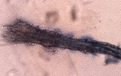 Ciuperca firului de păr